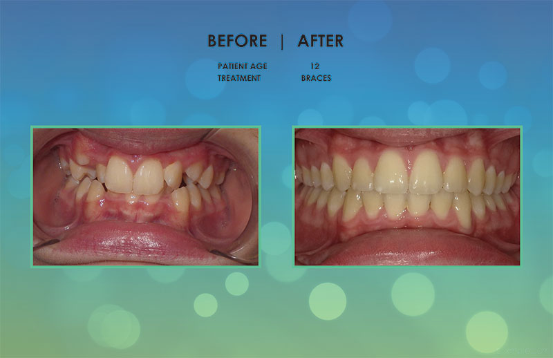 Orthodontic Before & After Photo